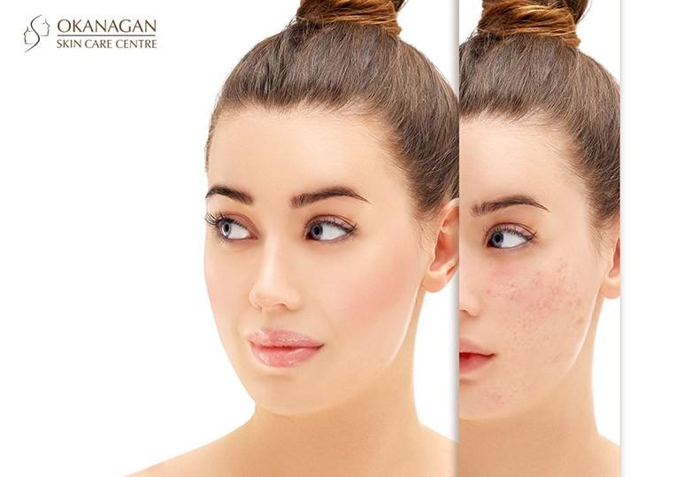 Acne-scar-removal-dermal-fillers