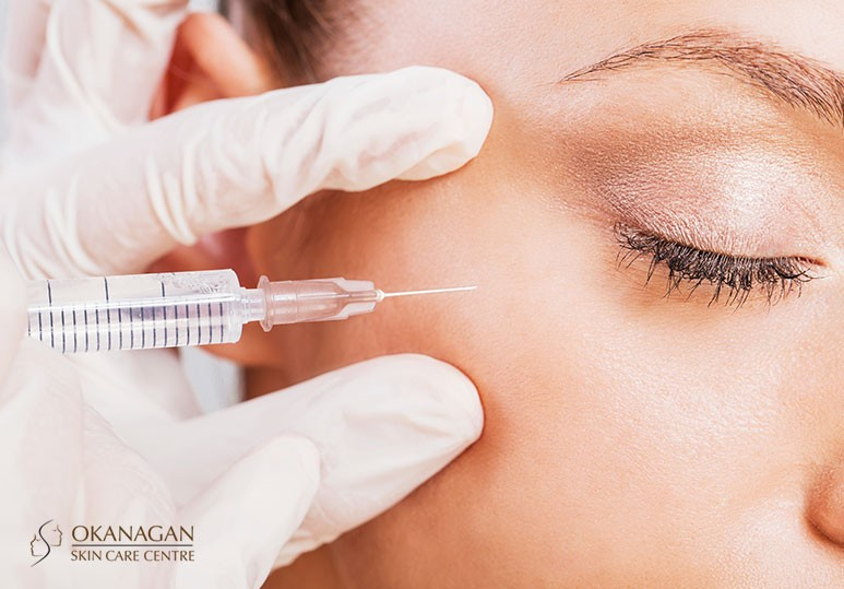 BOTOX® or Tissue Fillers