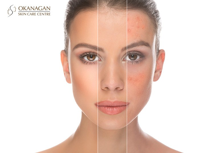 Kelowna Acne Treatment