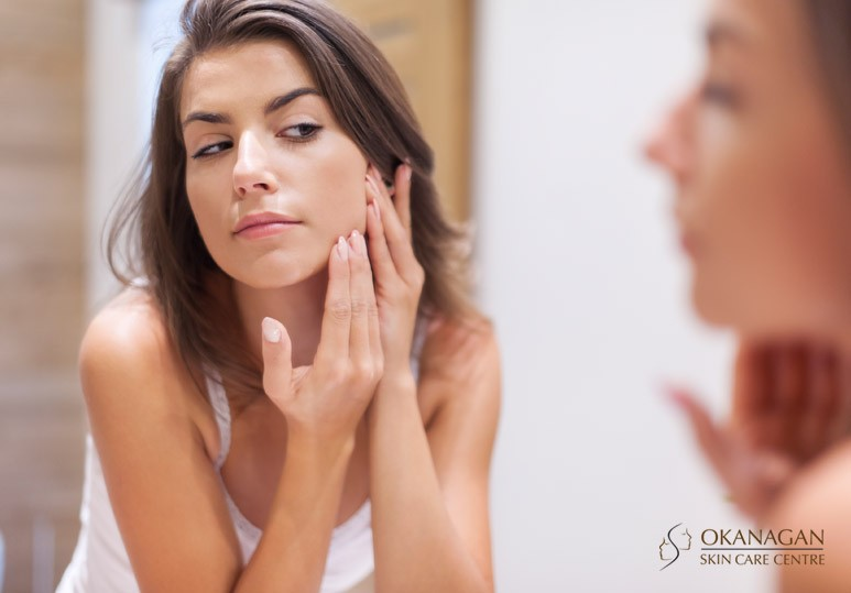 3 Best Chemical Peels for Acne Scars