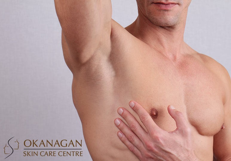 Okanagan Skin Care Laser Hair Removal For Men