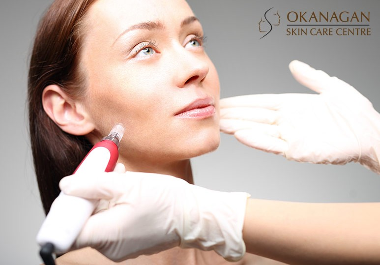 Okanagan Skin Care Centre Kelowna BC Everything You Need to Know About Microneedling