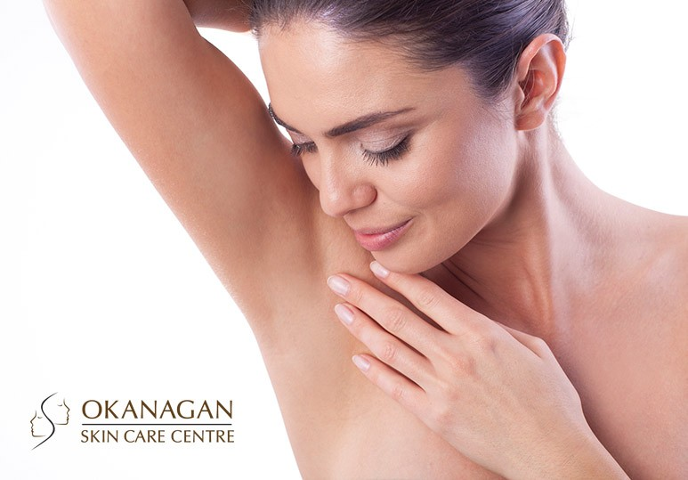 Okanagan Skin Care Centre Sensitive Skin Can Benefit From Laser Hair Removal
