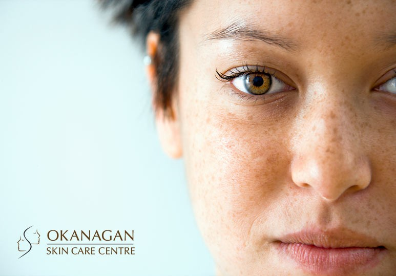 Okanagan Skin Care Centre Thick Skin Is In: Everything You Need To Know About The Skin Barrier