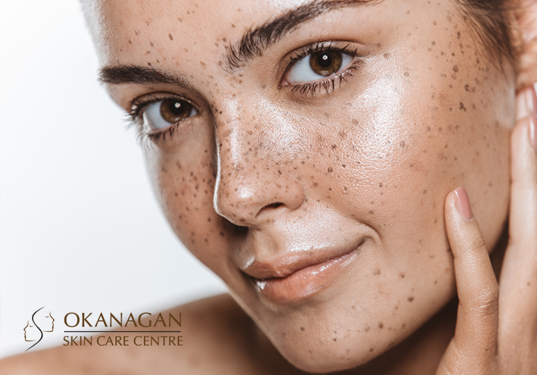 Kelowna Botox To Get You Summertime-Fine