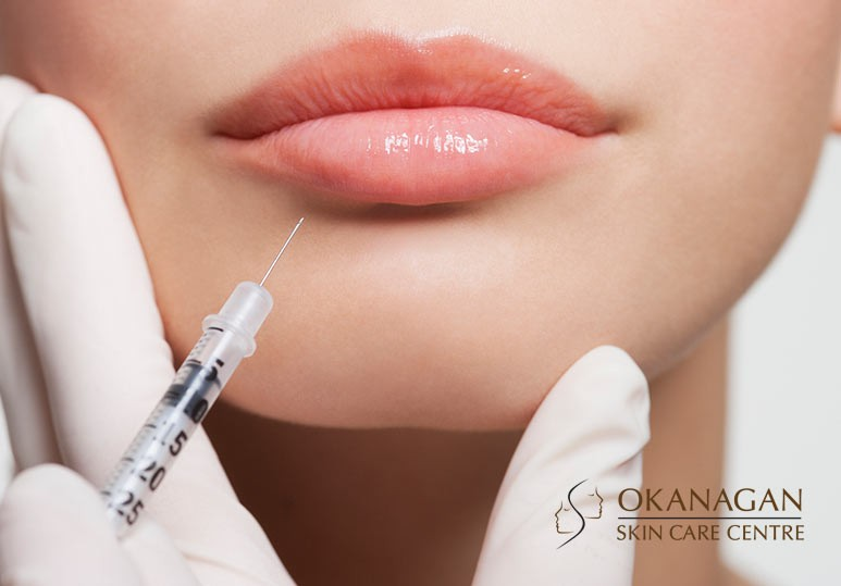 5 Reasons to Consider a Lip Filler Treatment