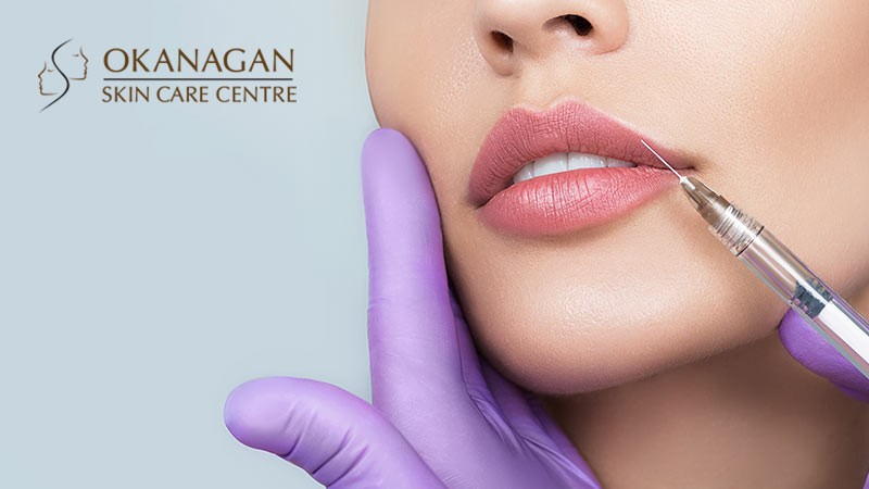6 Things You Must Know Before Your First Lip Filler Treatment