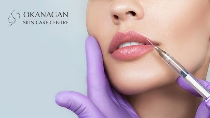 4 Incredible Benefits of a Restylane Lip Filler Treatment