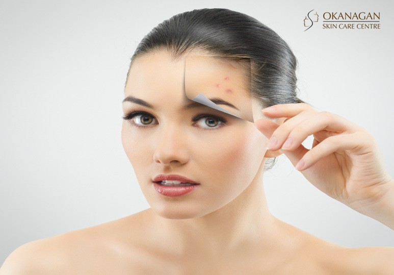 Kelowna Chemical Peels Say Goodbye to Acne With Our Advanced Chemical Peels