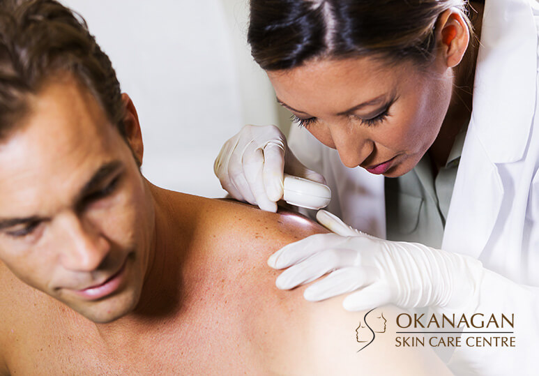 What Is Actinic Keratosis And How Can I Prevent It?