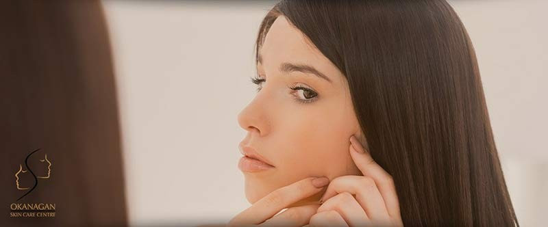 acne treatment kelowna