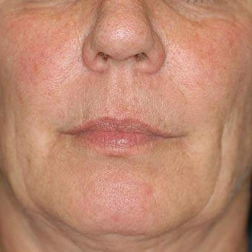 Before and After Skin Care Photos, Kelowna British Columbia