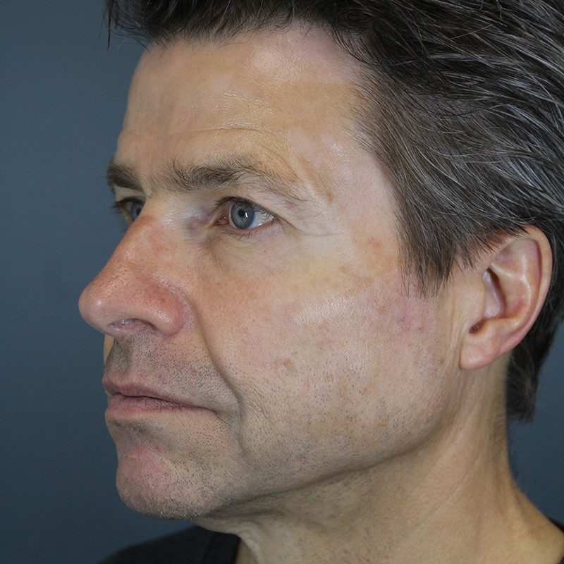 Okanagan Skin Care - BOTOX (Before/After)