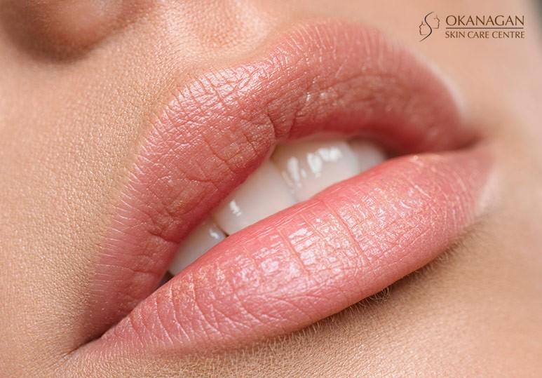 kelowna lip enhancement
