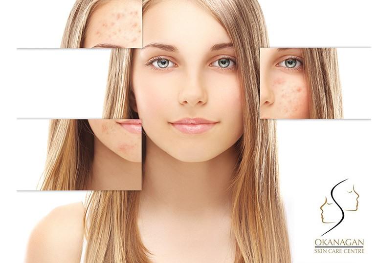 Kelowna Rosacea Skin Treatment