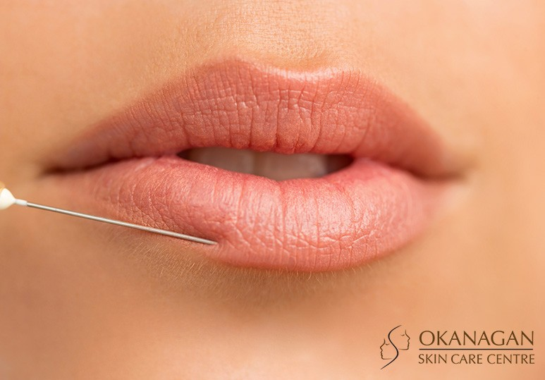 Natural Kelowna Lip Enhancement
