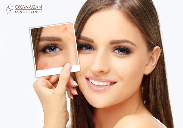 rosacea skin treatments kelowna
