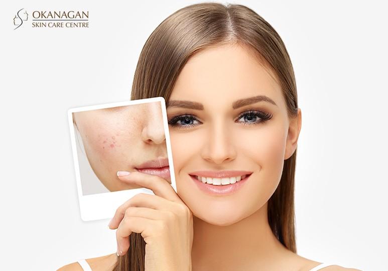Microdermabrasion &  Skin Clinic Kelowna